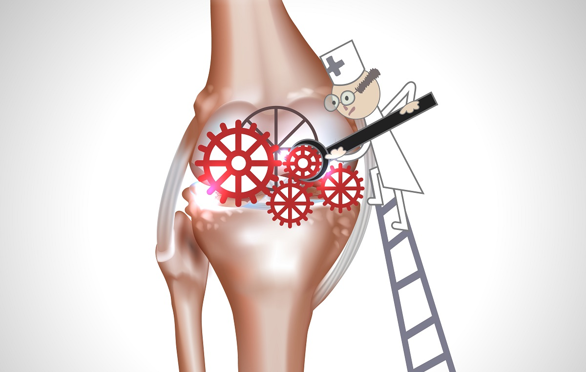 breakthrough tech offers alternatives to knee replacement, Skeleton